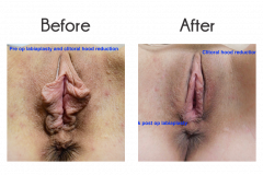 Libiaplasty & Clitoral Hood Reduction